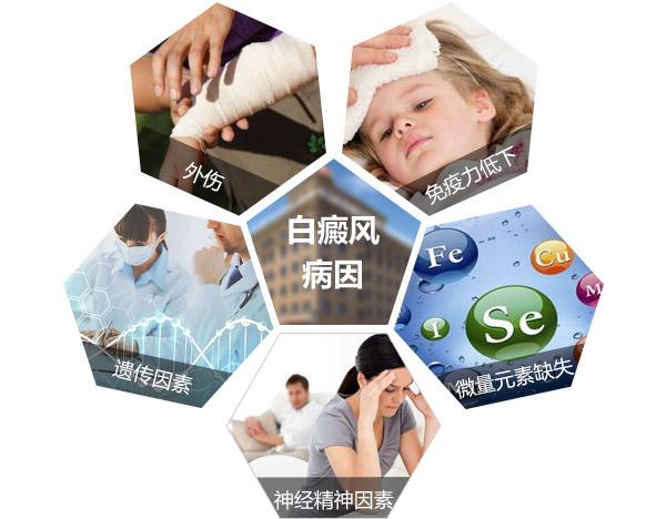杭州治疗白癜风医院讲述 身体出现白斑的原因是什么?