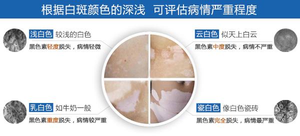 杭州小孩治疗白癜风 面部白癜风发病诱因