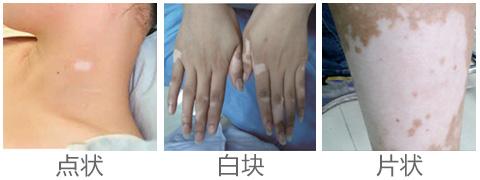 手部白癜风患者护理常识有哪些呢?