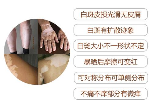 杭州哪些医院治白癜风比较好?白癜风症