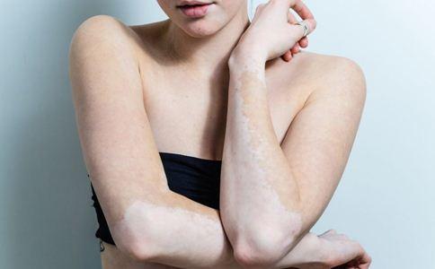孕妇早期白斑症状要注意看哪些地方呢?