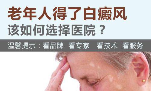 老年白癜风患者病情要怎么控制