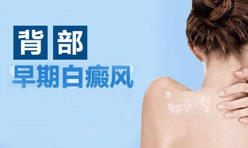 杭州皮肤上有什么症状表现是早期白癜风