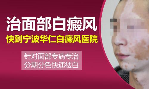 宁波怎样才可以迅速的医好脸部白癜风呢?