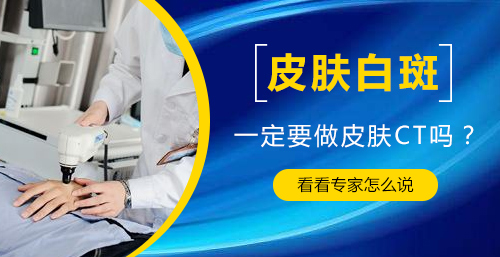 杭州儿童得了白癜风怎么恢复的快