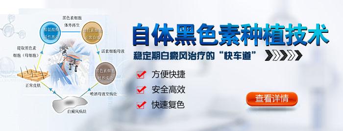 """杭州白癜风医院回答 治疗白癜风进程太慢了,下面这""""四不""""你遵循了吗?"""