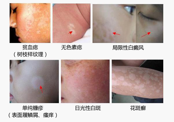 台州治疗白癜风医院,白癜风医院介绍:白癜风发病时的症状有哪些?