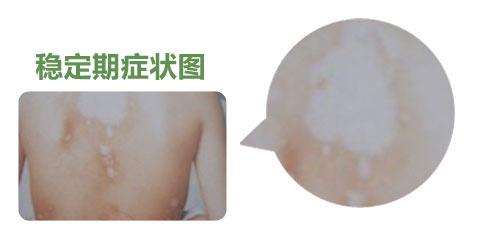 腰部白癜风的症状表现