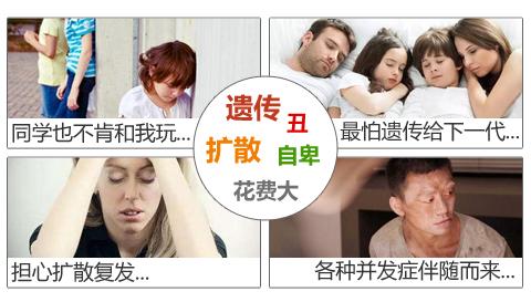 白癜风对于患者的危害表现在哪些方面