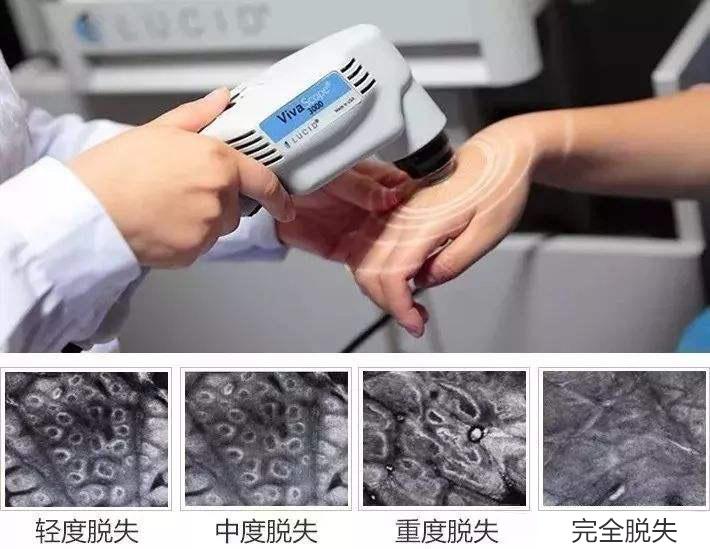 杭州治疗白癜风医院回答 儿童颈部白癜风有哪些症状?