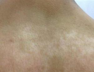 桐庐患者颈部有白癜风需要怎么治疗?