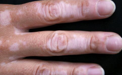 手部白癜风怎么护理呢?