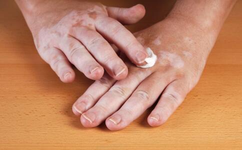 三亞治療白癜風患者皮膚護理重要嗎
