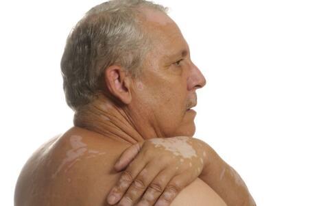 台州哪家医院治疗白癜风?怎样进行护理服务老年人面部的白癜风?