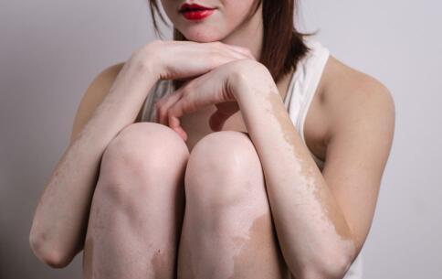 女性患上白癜风该注意什么?