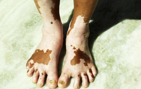 分宜县白癜风患者一定会患上皮肤癌这是真的吗