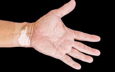 拱墅冬季白癜风患者的手如何护理白斑呢??