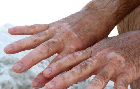 手指上的白癜風很難治療嗎?三亞白癜風醫院