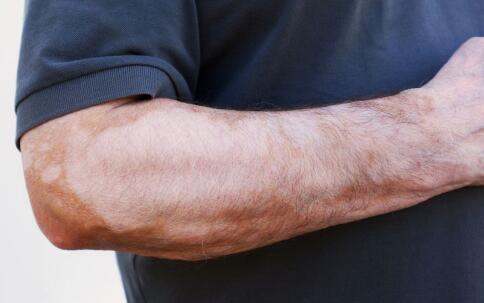 手臂患有白癜风该怎么诊疗呢?