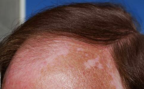 三亞白癜風醫院,頭皮上有白癜風可以植發嗎