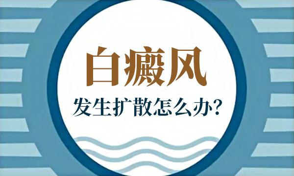 宁波哪里治疗白癜风医院?早期白癜风能不