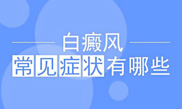 宁波医院怎么看白癜风病的?白癜风的症状